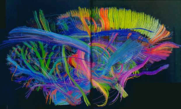 collegamenti cervello