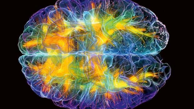 1 cervello