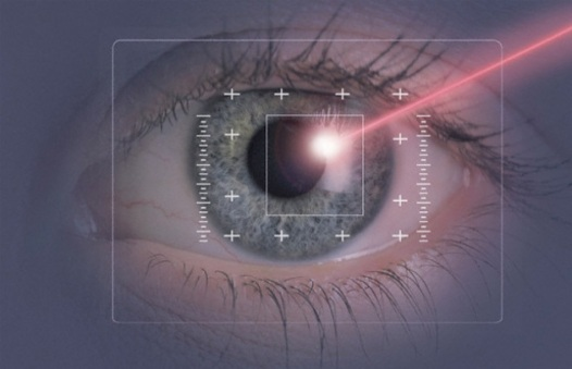 laser-occhi